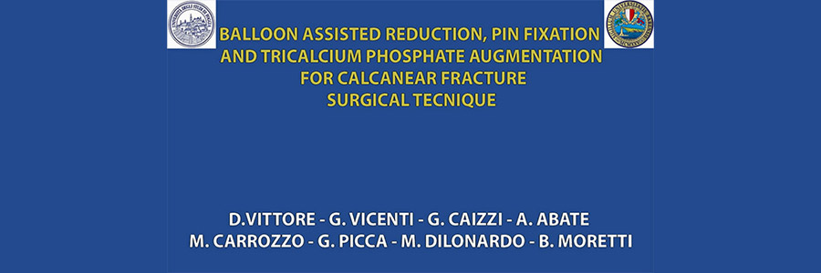 Balloon Assisted Reduction, Pin Fixation and Tricalcium Phosphate Augmentation for Calcanear Fracture