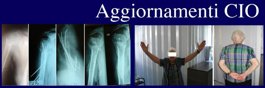 Osteosintesi percutanea con chiodini elastici nelle fratture dell'epifisi prossimale di omero nell'anziano
