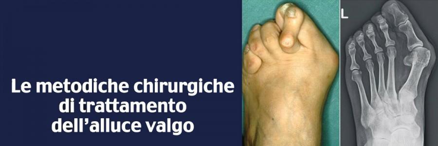 Eziopatogenesi ed anatomia patologica dell'alluce valgo