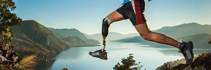 La gestione del paziente amputato di arto inferiore: dall'amputazione all'addestramento al cammino con la protesi